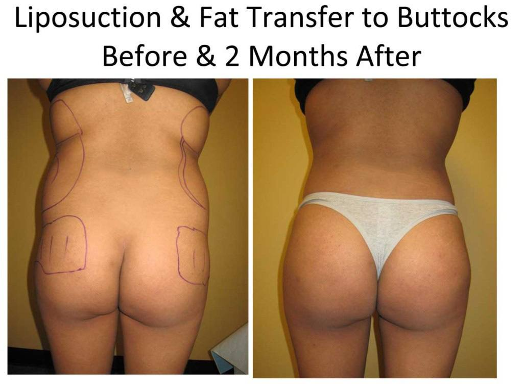 Liposuction_and_Fat_Transfer_to_Buttocks21-1024x768