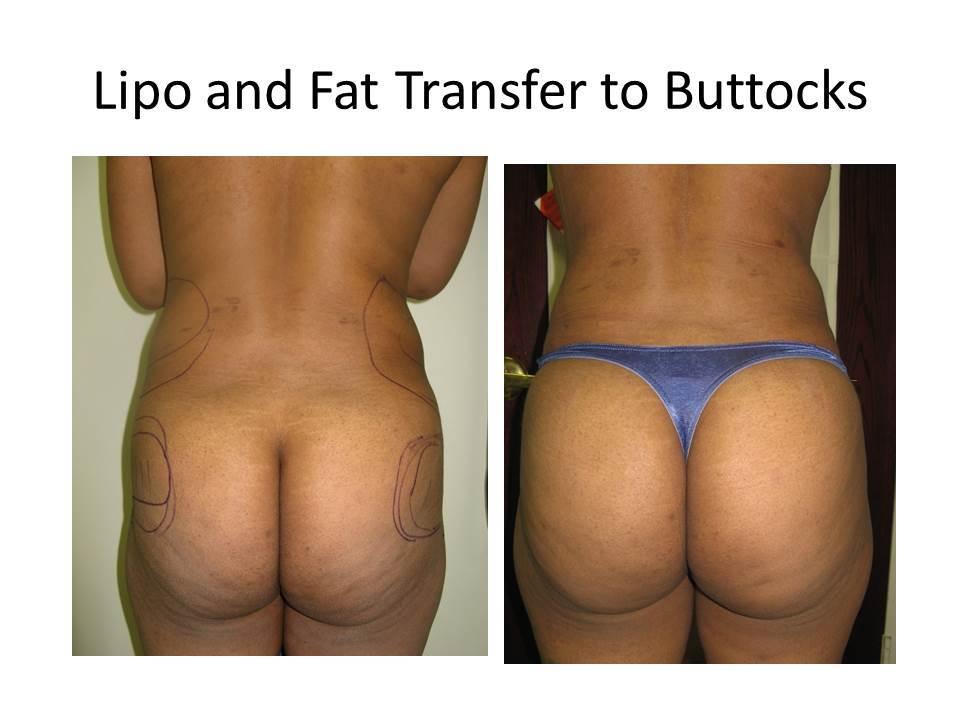 That vintage milf big tits bikini has been