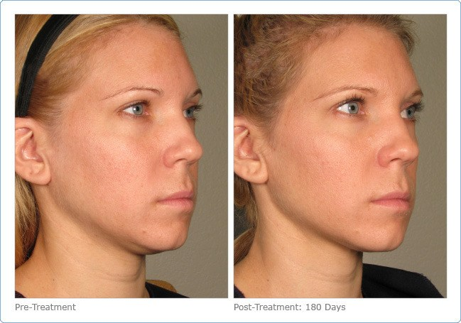 Ultherapy-Before-and-After-10