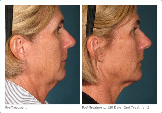 Ultherapy-Before-and-After-1