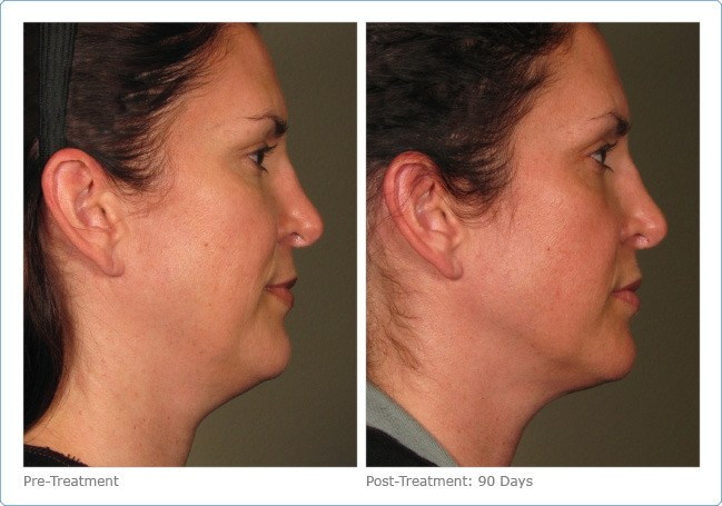 Ultherapy-Before-and-After-4