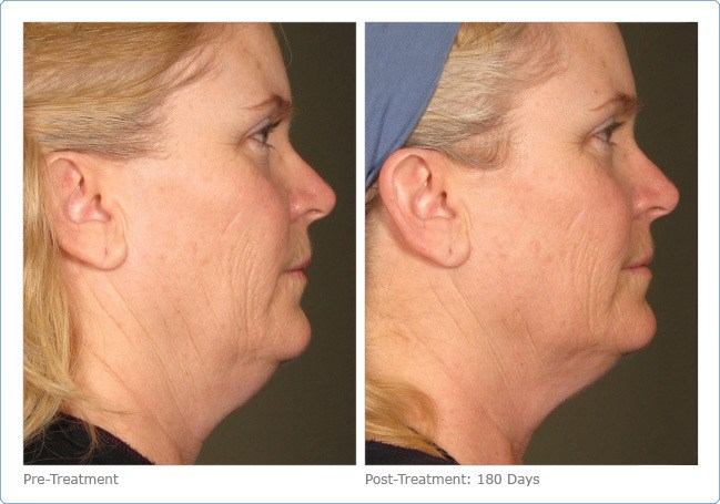 Ultherapy-Before-and-After-5