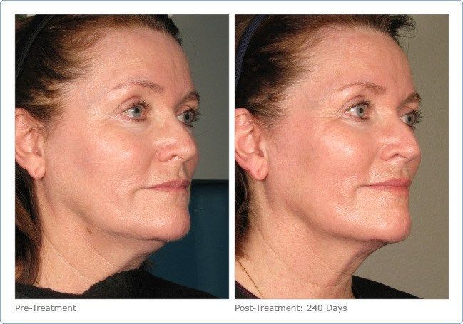 Ultherapy-Before-and-After-8
