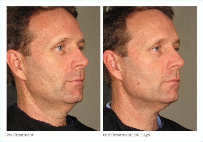 Ultherapy-Before-and-After-9