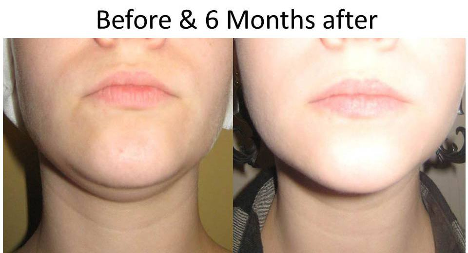 beforeandAfterLaserFacelift-1