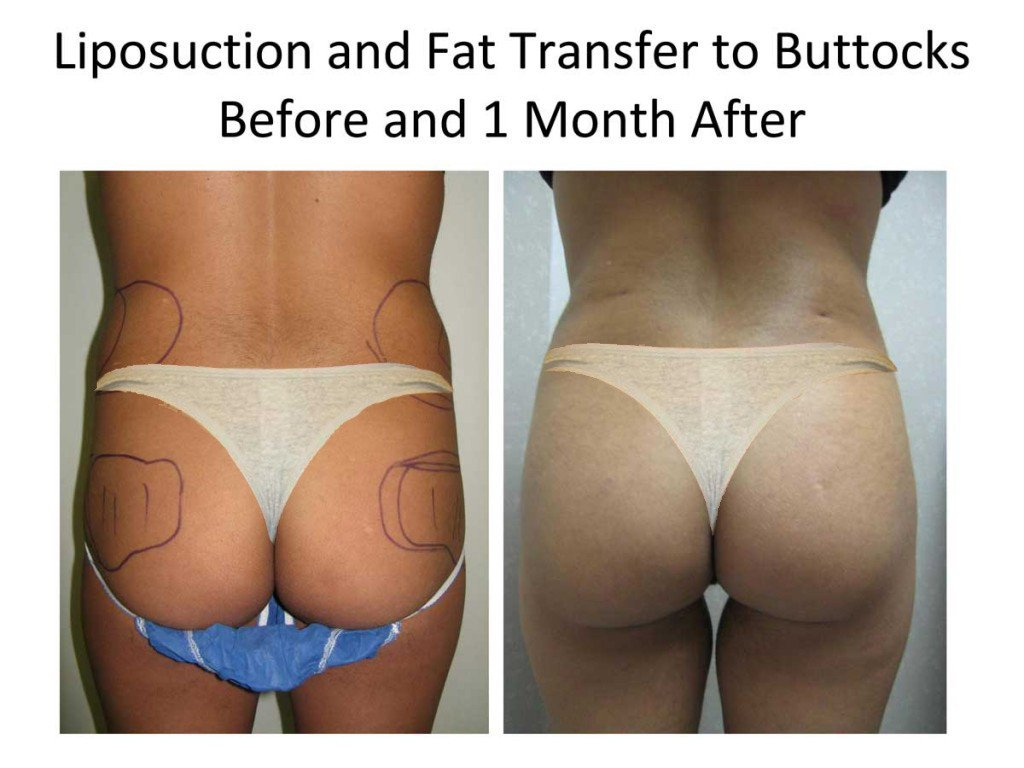 Liposuction_and_Fat_Transfer_to_Buttocks4