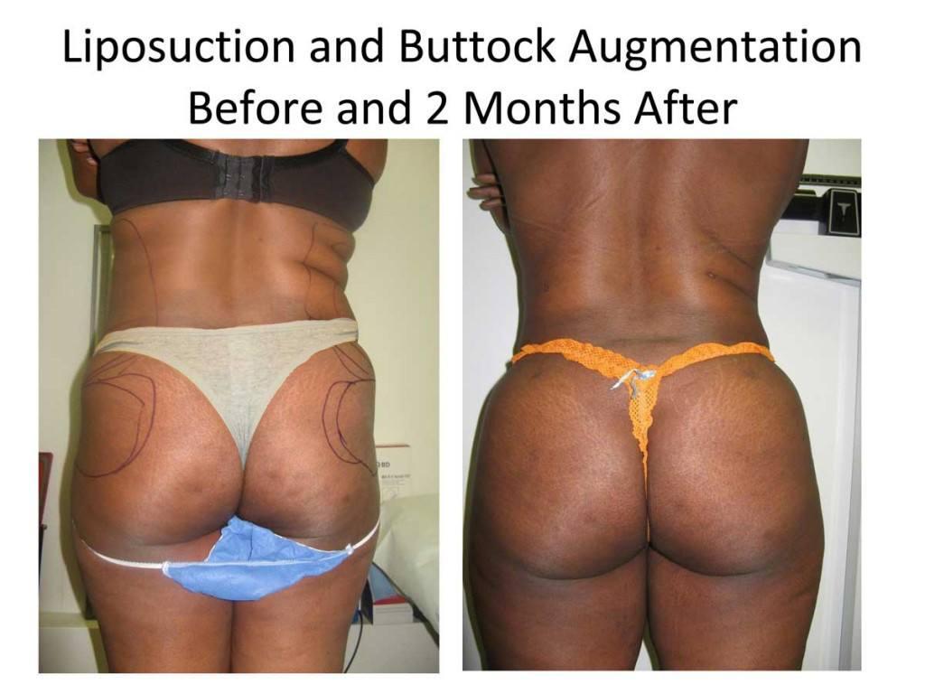 fat_transfer_to_buttocks3-1