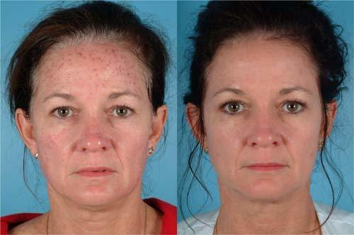 Ipl Photo Facial Rejuvenation Smart Liposuction Palm Beach