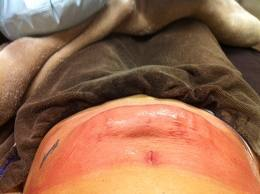 CoolSculpting Freeze the fat Compared to Smart Liposuction