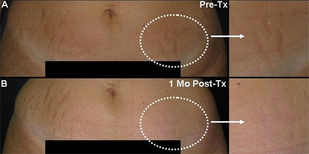 Stretch Marks Treatment Before & After Photo