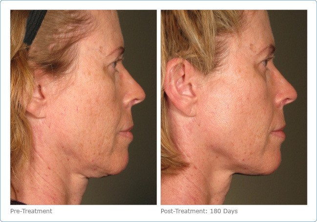 Ultherapy-Before-and-After-11