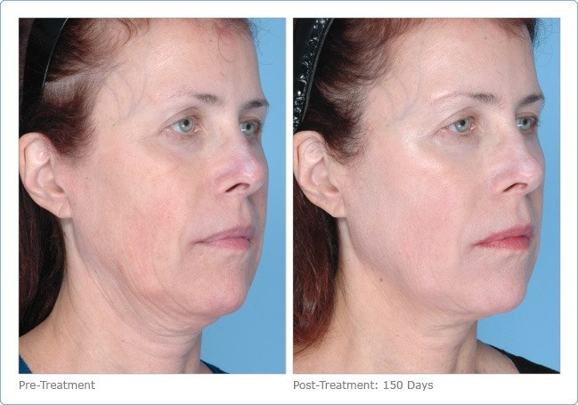 Ultherapy-Before-and-After-13
