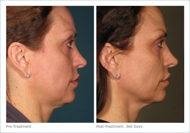 Ultherapy-Before-and-After-2