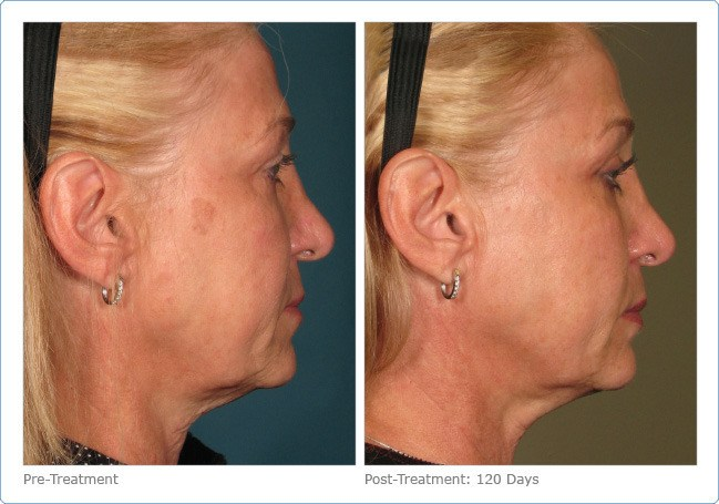 Ultherapy-Before-and-After-3