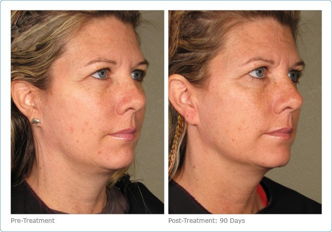 Ultherapy-Before-and-After-6
