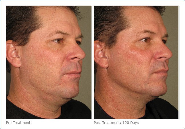 Ultherapy-Before-and-After-7