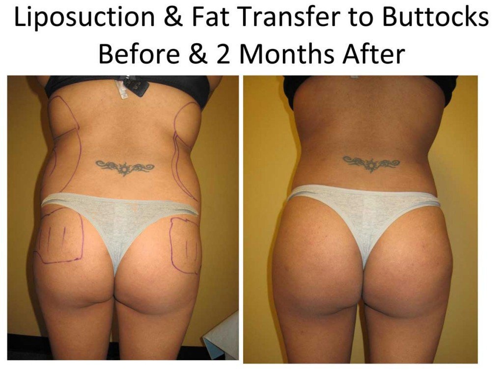 Liposuction_and_Fat_Transfer_to_Buttocks2-1
