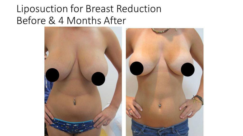 Does breast augmentation include breast reduction was