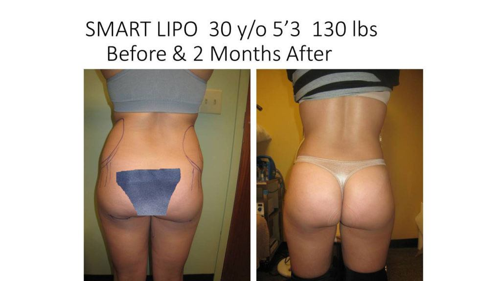 Smart Liposuction Before and After